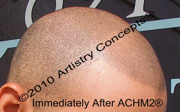 This is the same client immediately after his treatment