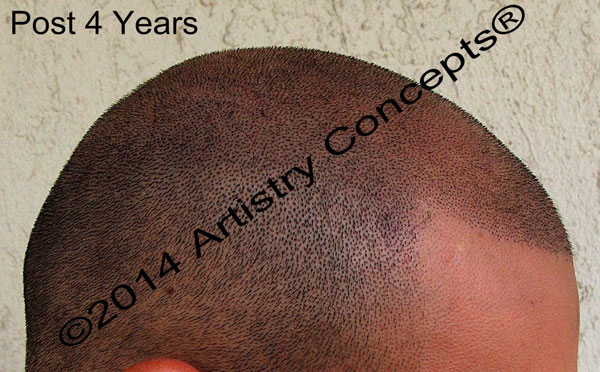 This is the same client again, four years after his treatment