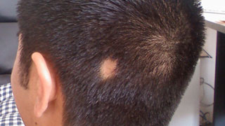 Symptoms of alopecia areata