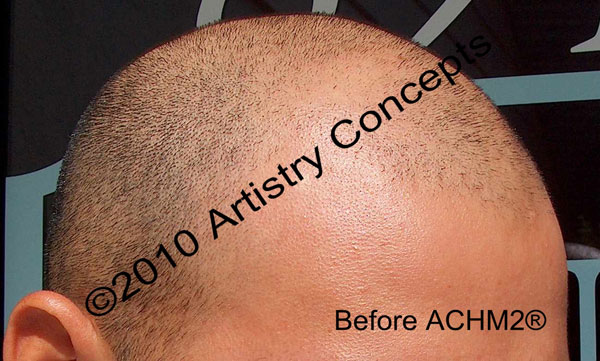 This is a real Artistry Concepts before his treatment