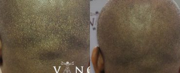 FUE scars camouflaged by Vinci
