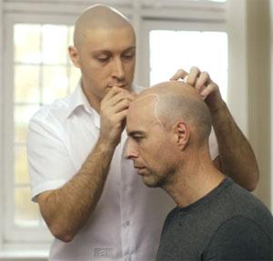 Jason Pires - Skalp practitioner