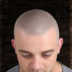 Example of Skalp treatment