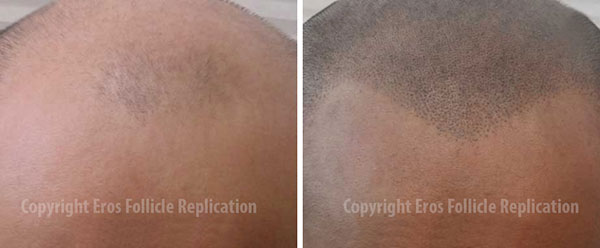 ScalpMP before and after photo