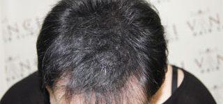 SMP under longer hair