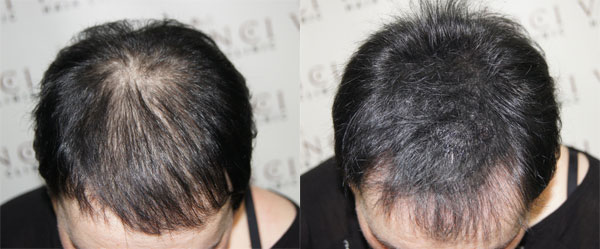 A Vinci SMP treatment under longer hair