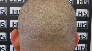 A hair transplant scar camouflaged with SMP