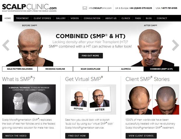 The Scalp Clinic website
