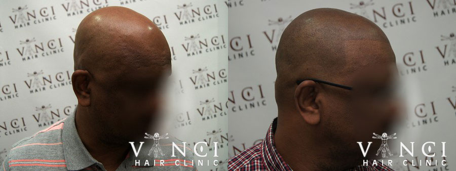 Another SMP treatment from Vinci's Lagos clinic