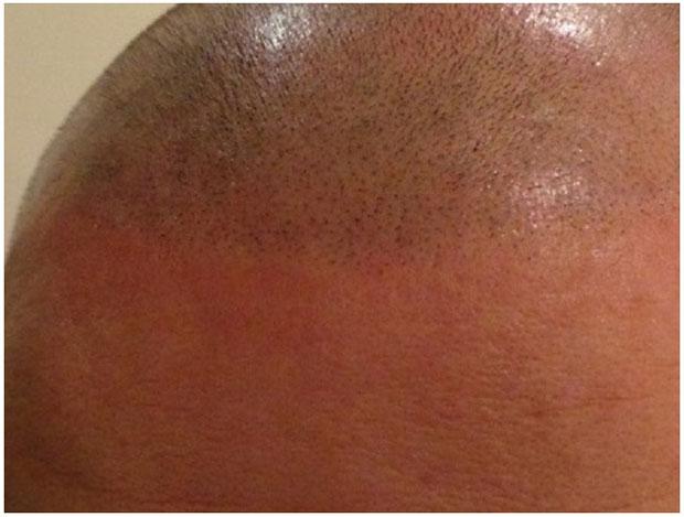 Treatment by Mikro Hair