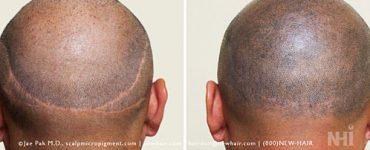 New Hair Institute strip scar